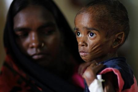 moter-holds-child-with-malnutrition